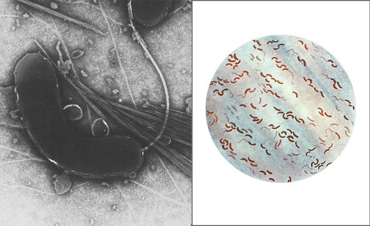 Vibrio cholerae, as seen under light microscope (Right, By CDC [Public domain]), or by transmission electron microscope (Left, By Tom Kirn, Ron Taylor, Louisa Howard - Dartmouth Electron Microscope Facility[Public domain]), via Wikimedia Commons