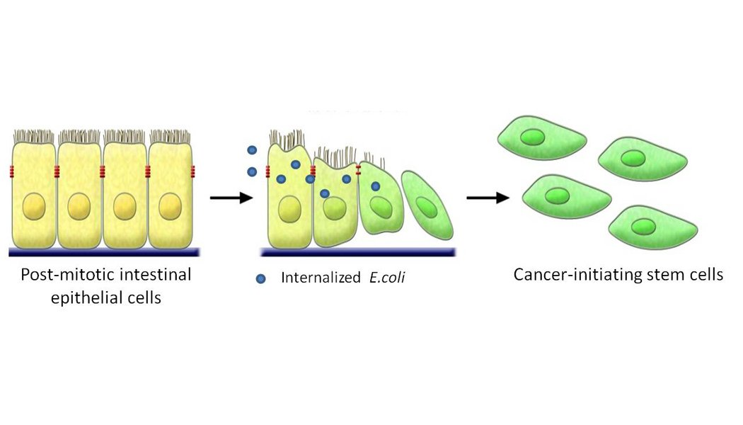 Aberrant internalisation of non-pathogenic gut E.coli expands cancer stem cell population and causes higher malignancy in colorectal cancer.