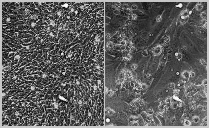 Vero cells microscope