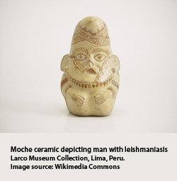 Moche ceramic of man with leishmaniasis, Larco museum collection, Peru