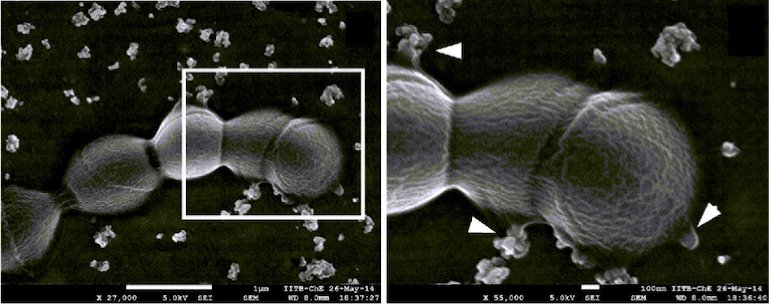 SEM image of GBS strain exhibiting aggregated MVs. Zoomed in view of the boxed area from left. Arrowheads indicate vesicles budding sites. Scale bar; 100 nm.