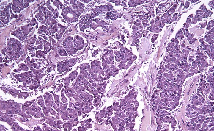 Micrograph of a acinar cell carcinoma of the pancreas