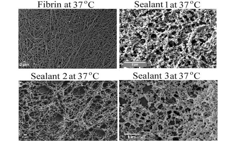 Effect of sealants (lab-made coagulants) on blood clotting in comparison to fibrin