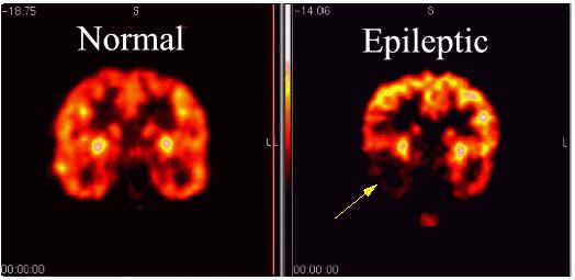 Scans showing the difference between a normal and epileptic brain